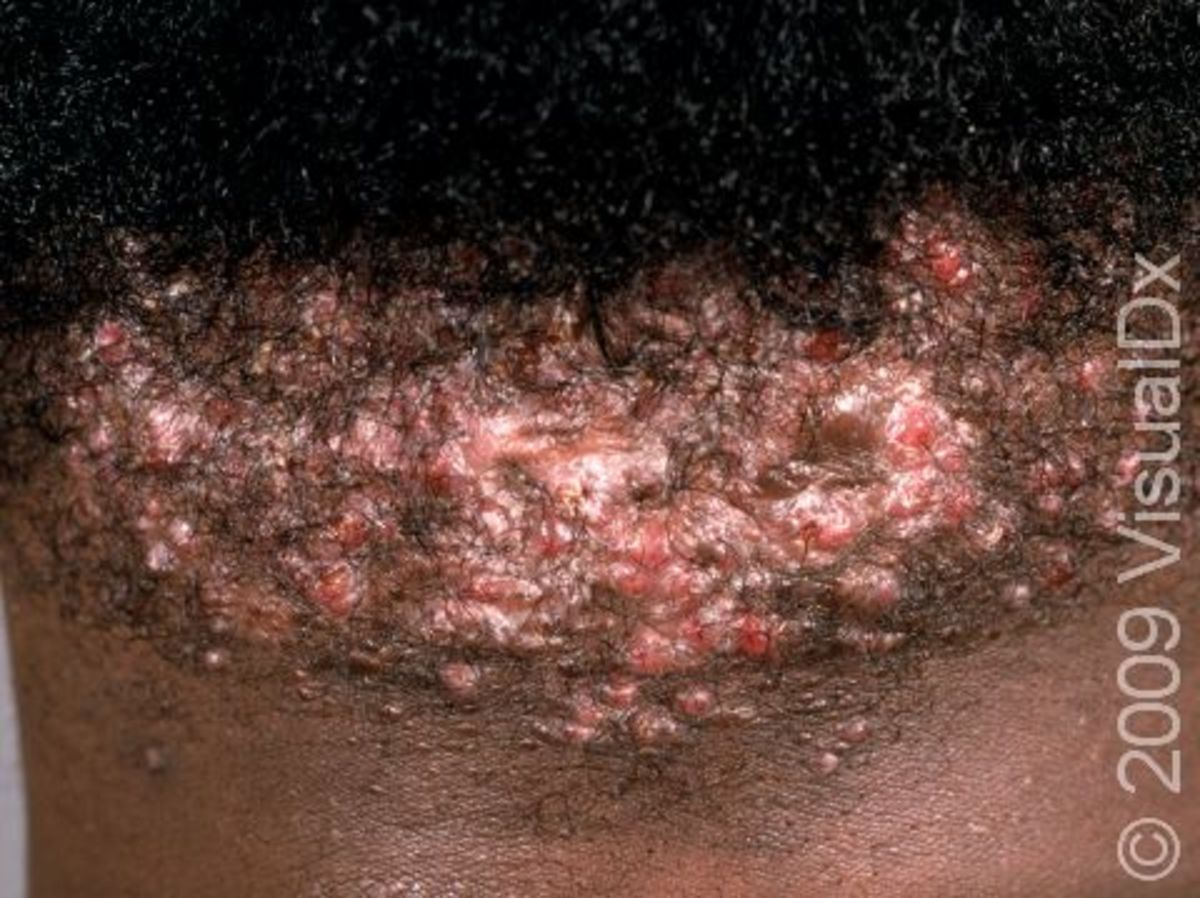 Advanced Acne Keloidalis, that has been scratched at / messed with and is now scarring.