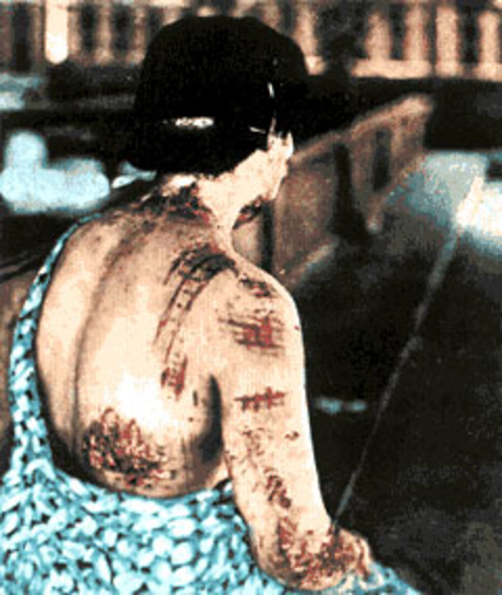 The energy released by the bomb was powerful enough to burn through clothing. The dark portions of the garments this victim wore at the time of the blast were emblazoned on to the flesh as scars, while skin underneath the lighter parts (which absorb