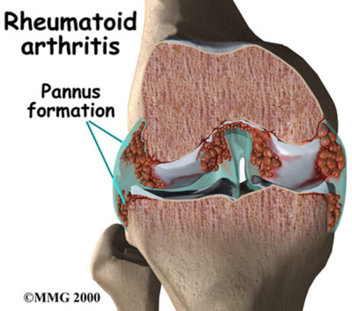 cure-arthritis
