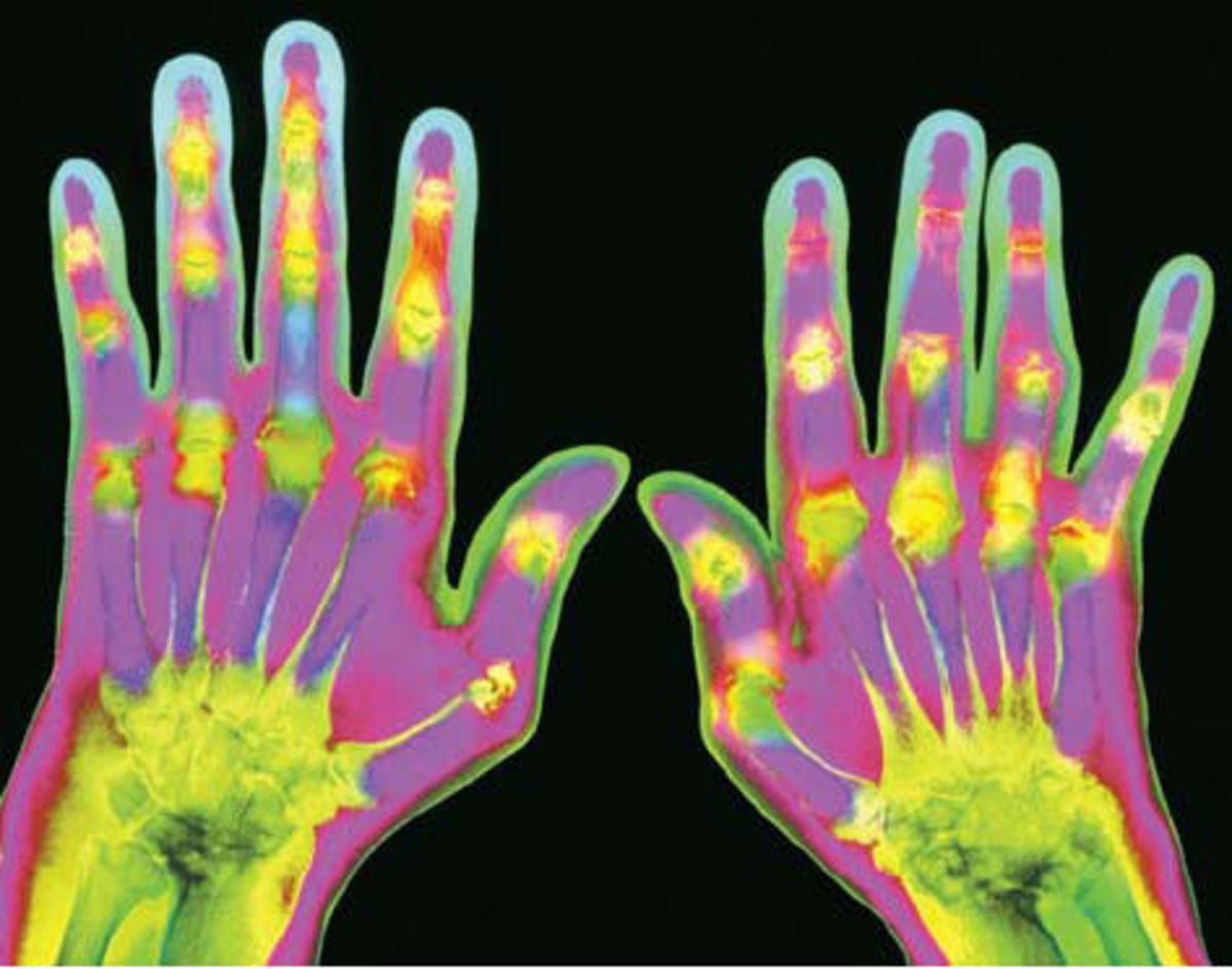 X-ray rheumatoid arthritis