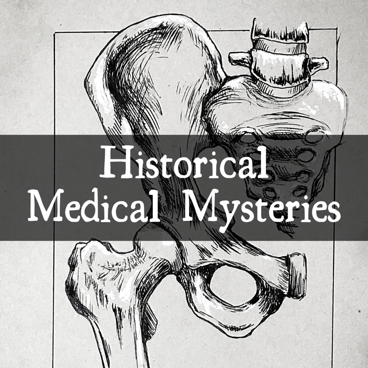 4 Weird Medical Mysteries From History