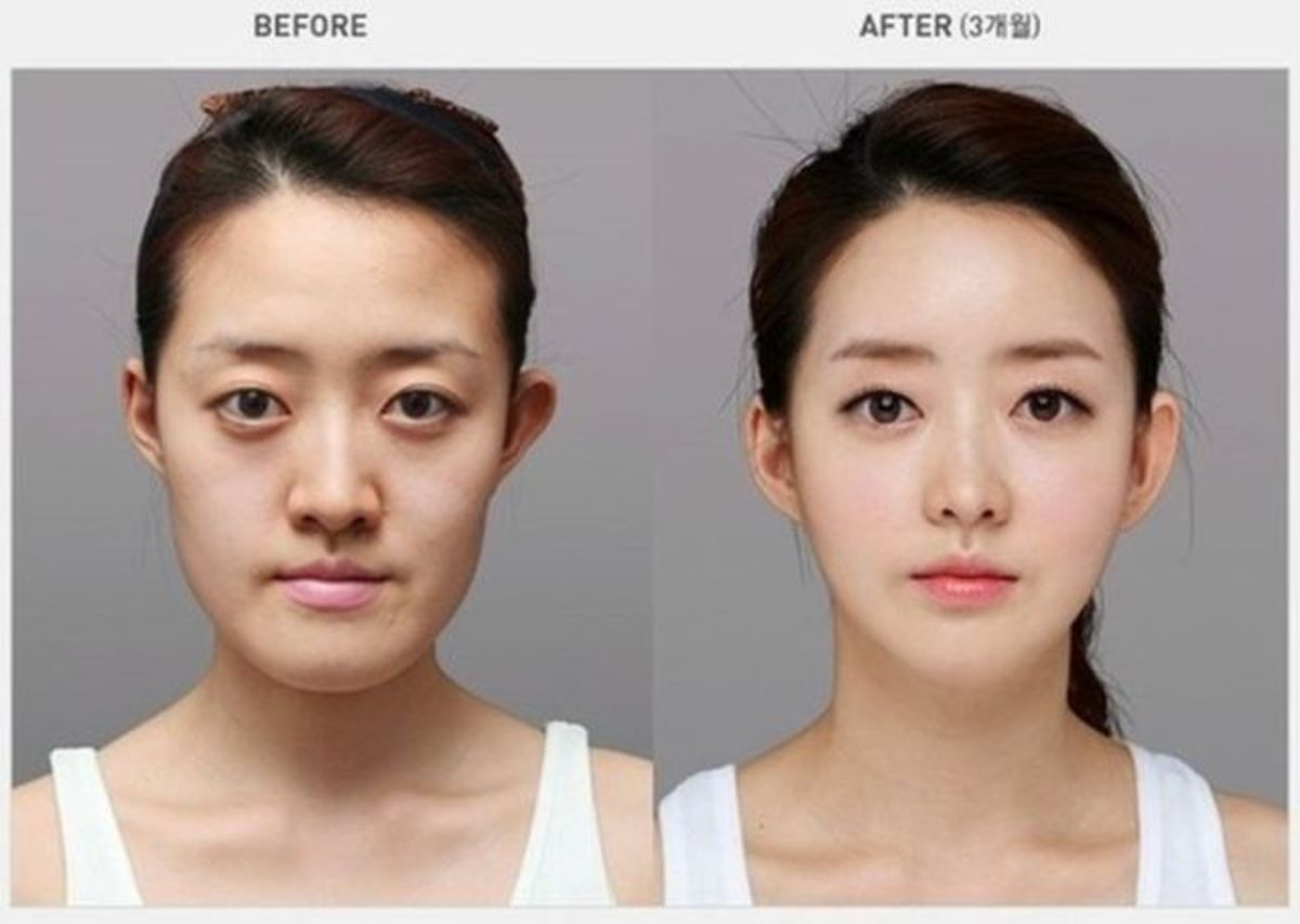 Before and after cosmetic surgery in Korea