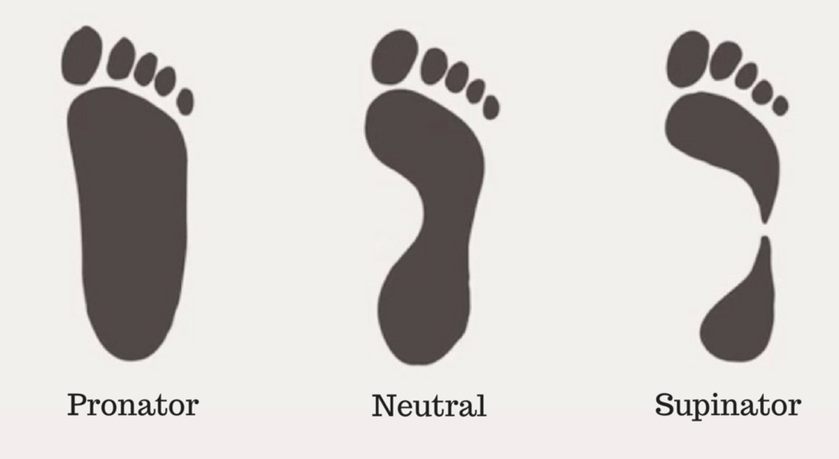 Find Your Foot Pronation Type: Neutral, Pronator, or Supinator