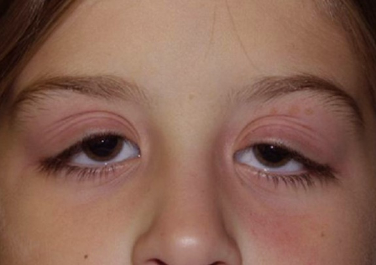 Swollen Eyelid Symptoms Treatment Pictures Causes