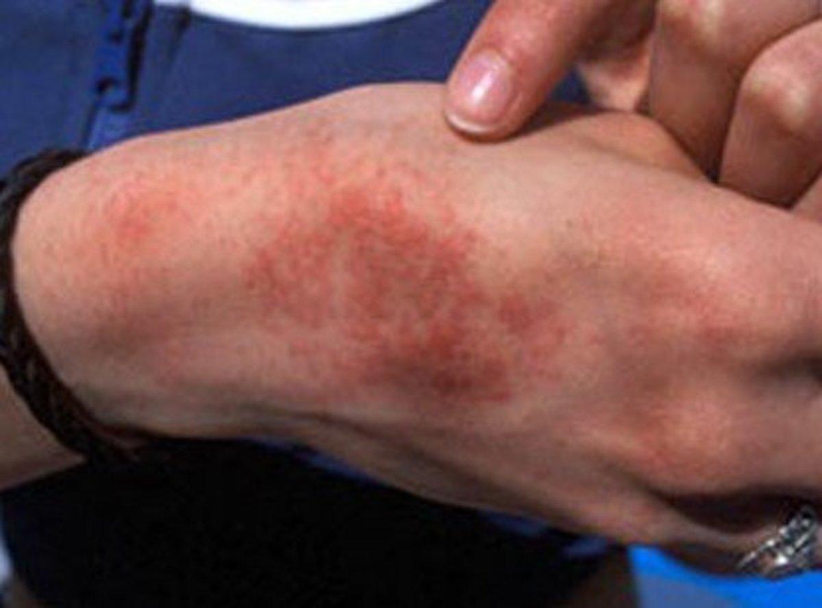 dermatitis on top of hands - photo #45