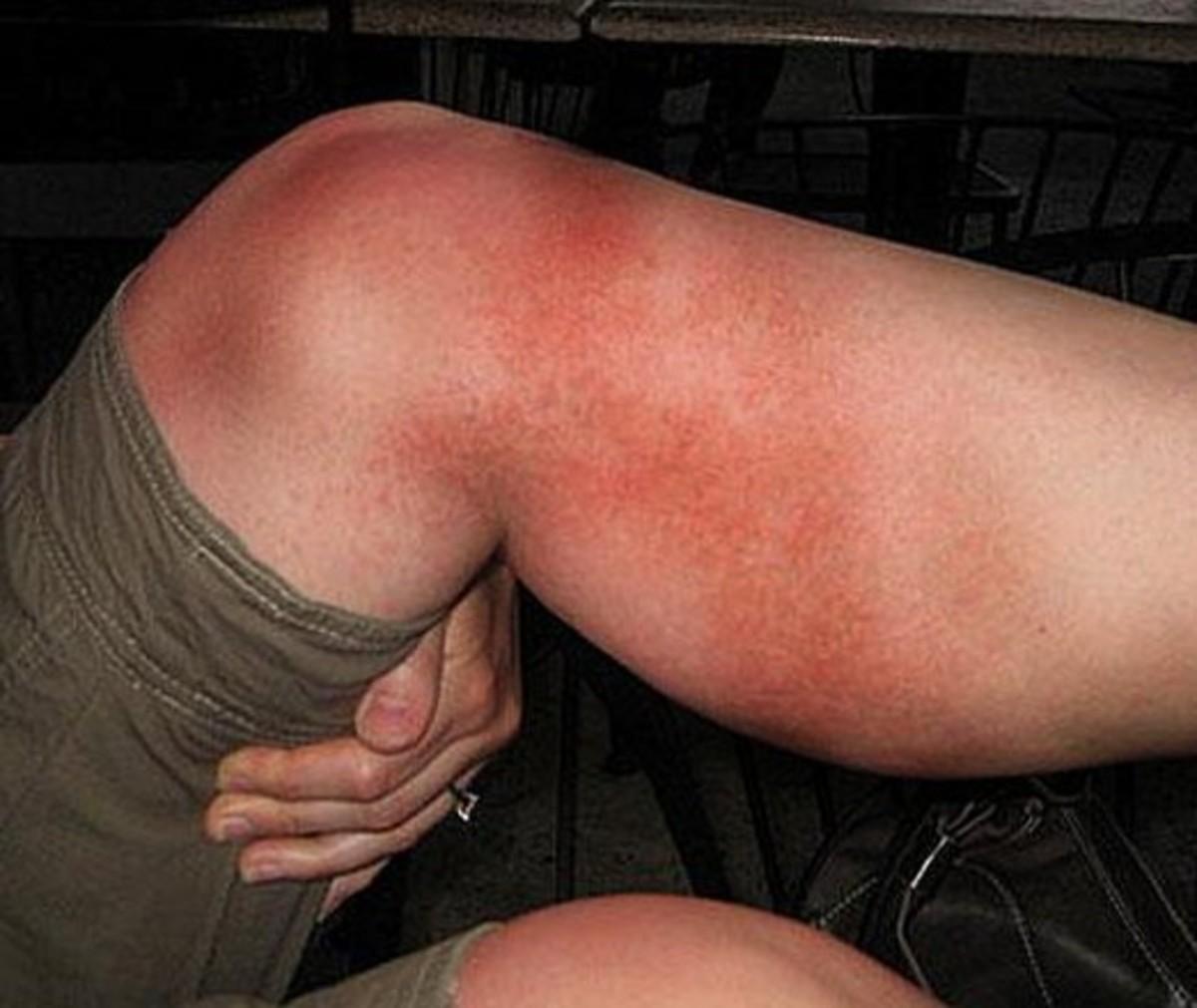 heat-rash