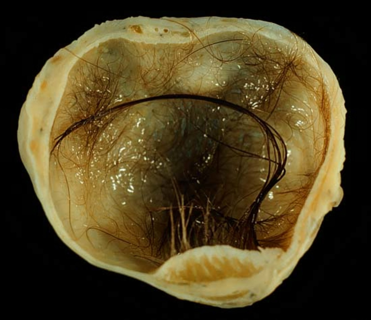 Photo of a Dermoid Cyst: notice the hair that has formed inside this mature cyst!