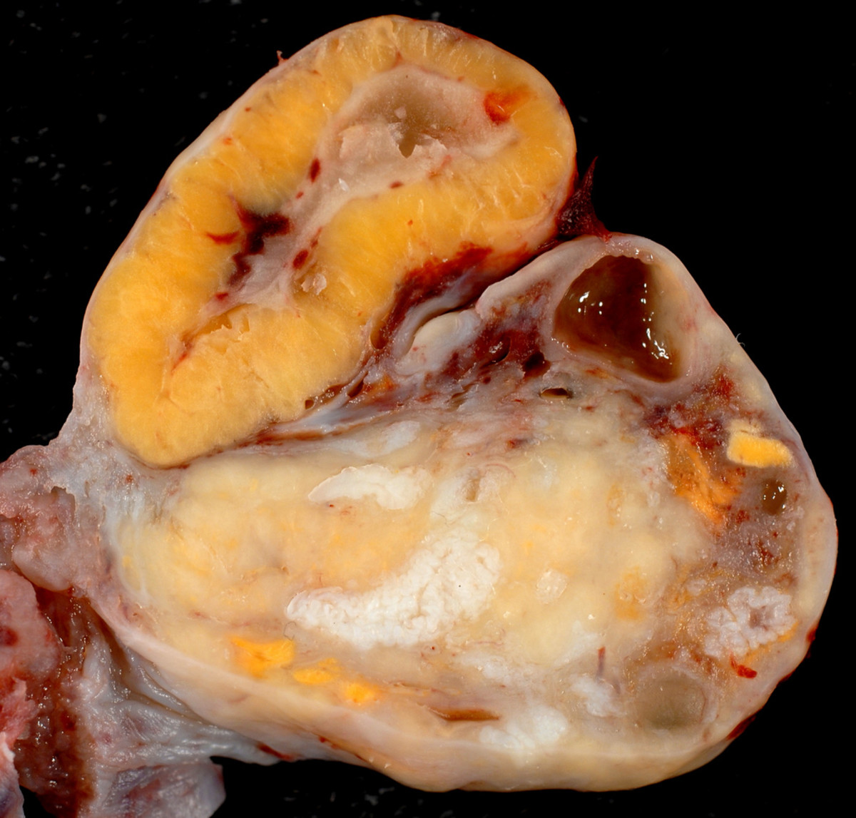 Fully developed Corpus Luteum cyst on the outside of an ovary