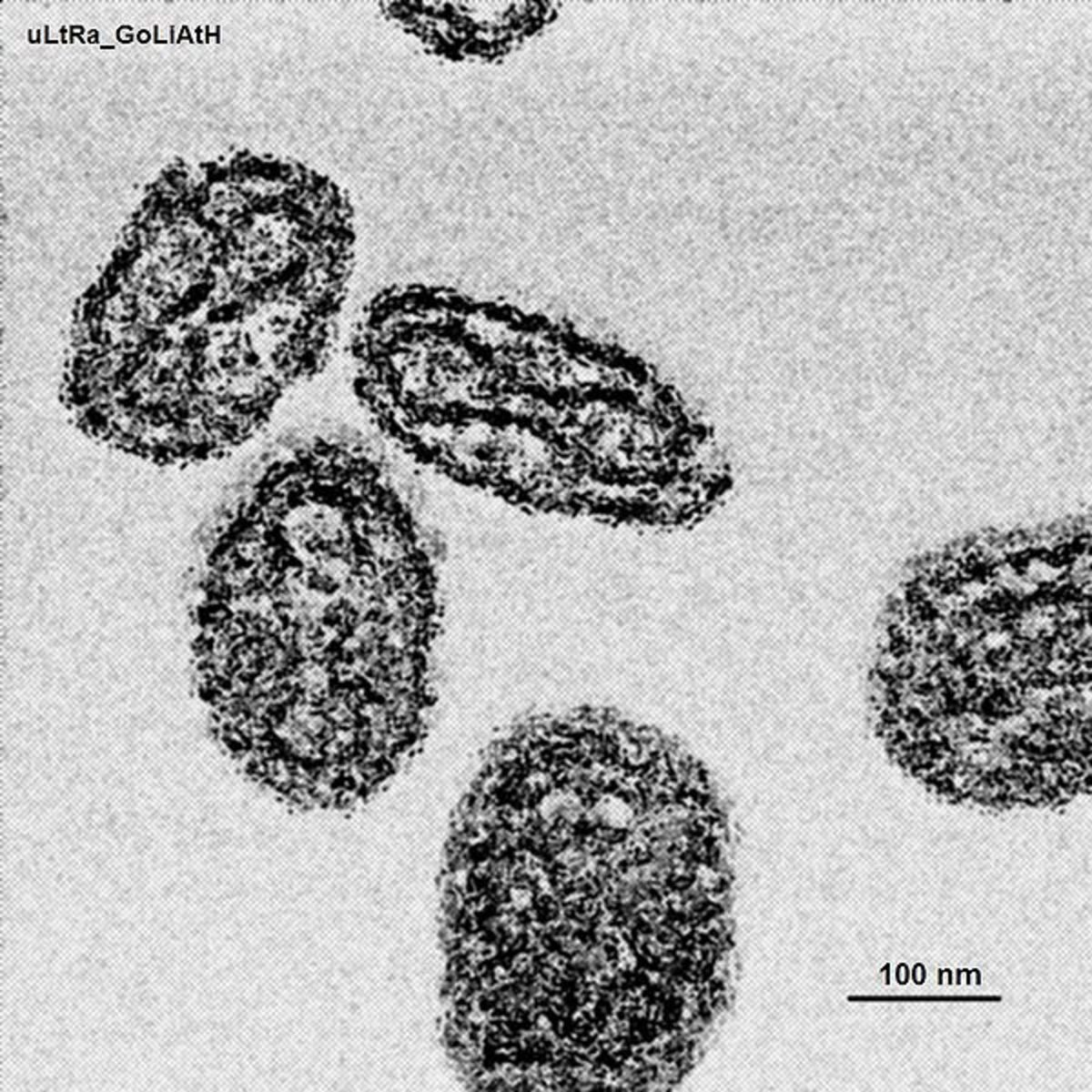 Smallpox virus