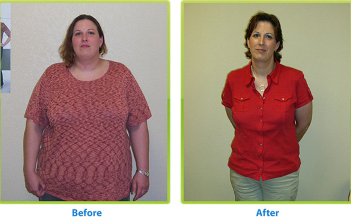 Dramatic Before and After Weight Loss Surgery
