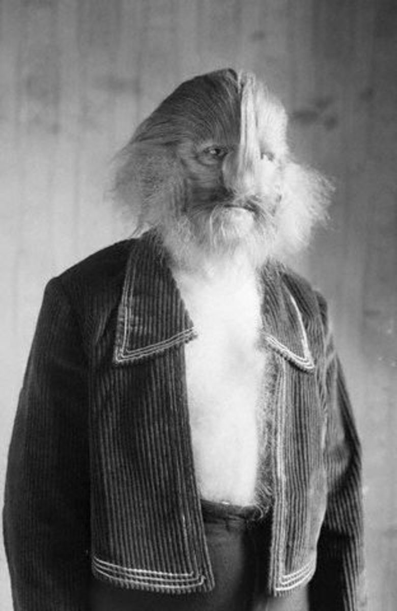 Stephan Bibrowski also known as Lionel the Lion-faced Man, was a circus freak show performer who suffered from hypertrichosis.
