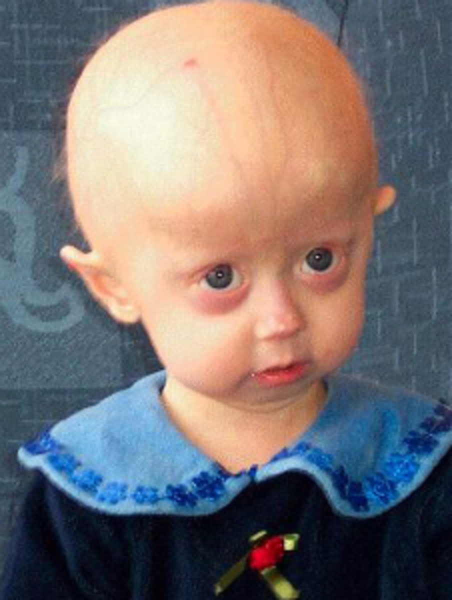 This child has been diagnosed with Progeria.
