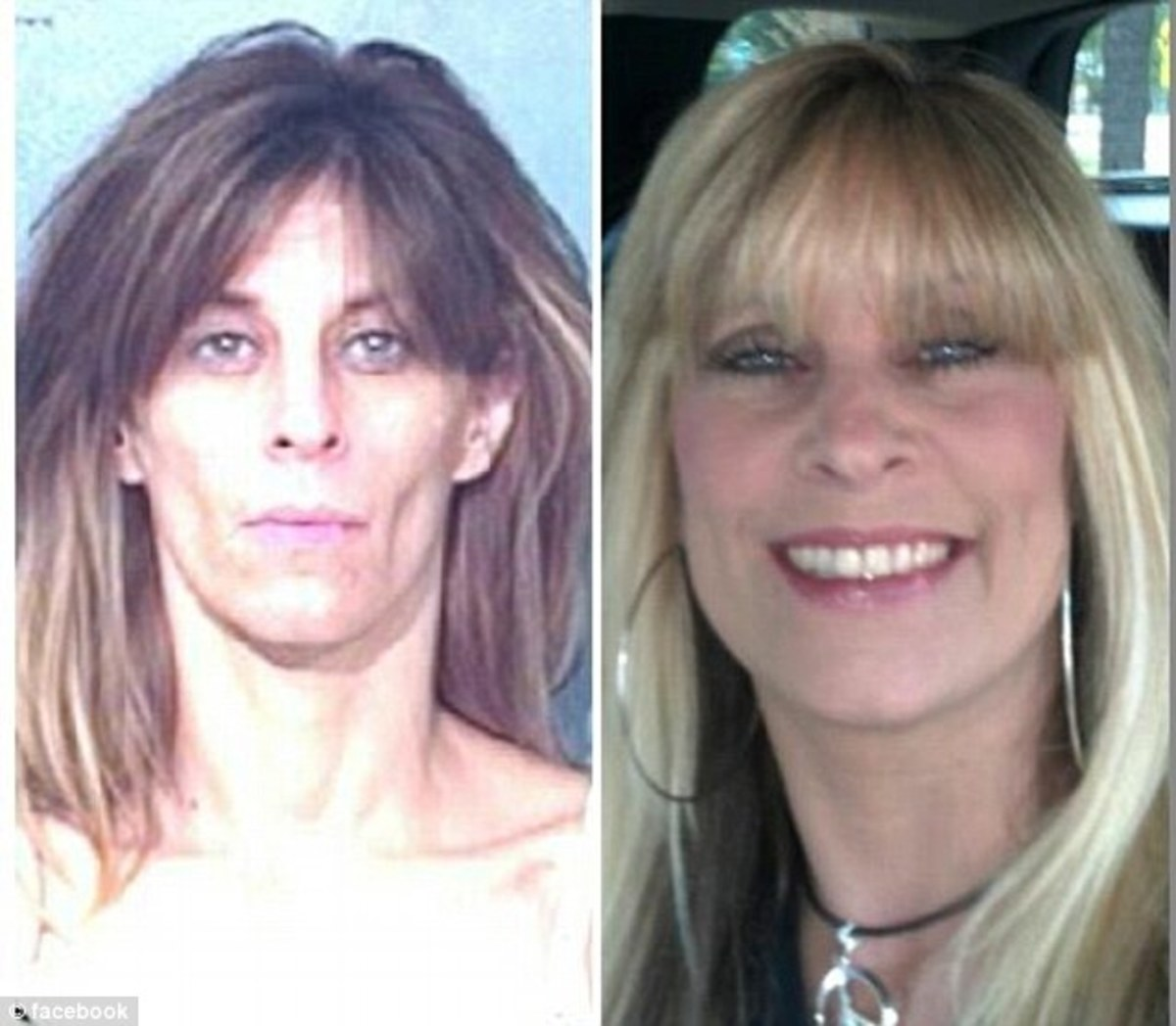 Amazing recovery of a former meth user. Sobriety and health is possible.