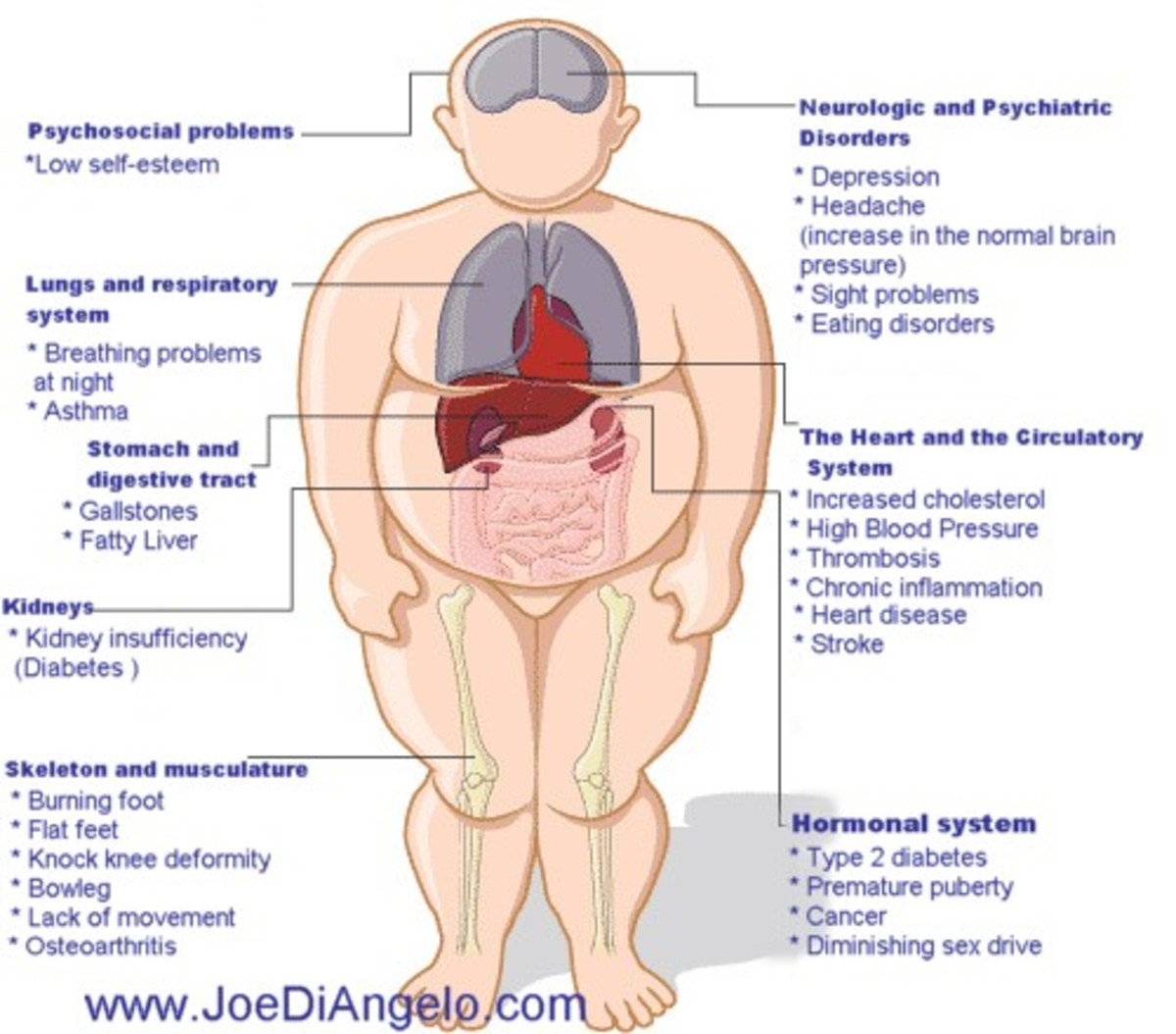 Anatomical clip art figure of an obese man detailing the various diseases that weight and inactivity can cause to the human body