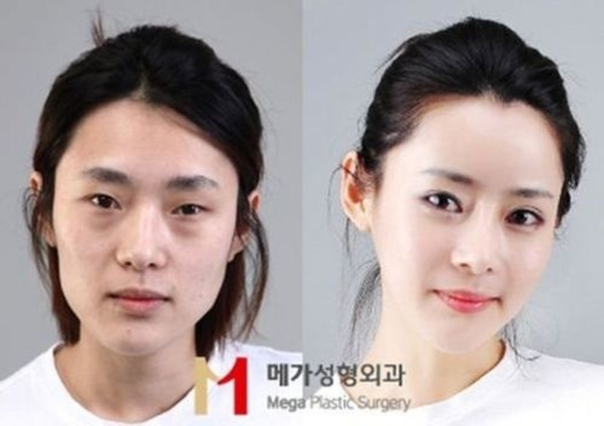 Another before and after plastic surgery