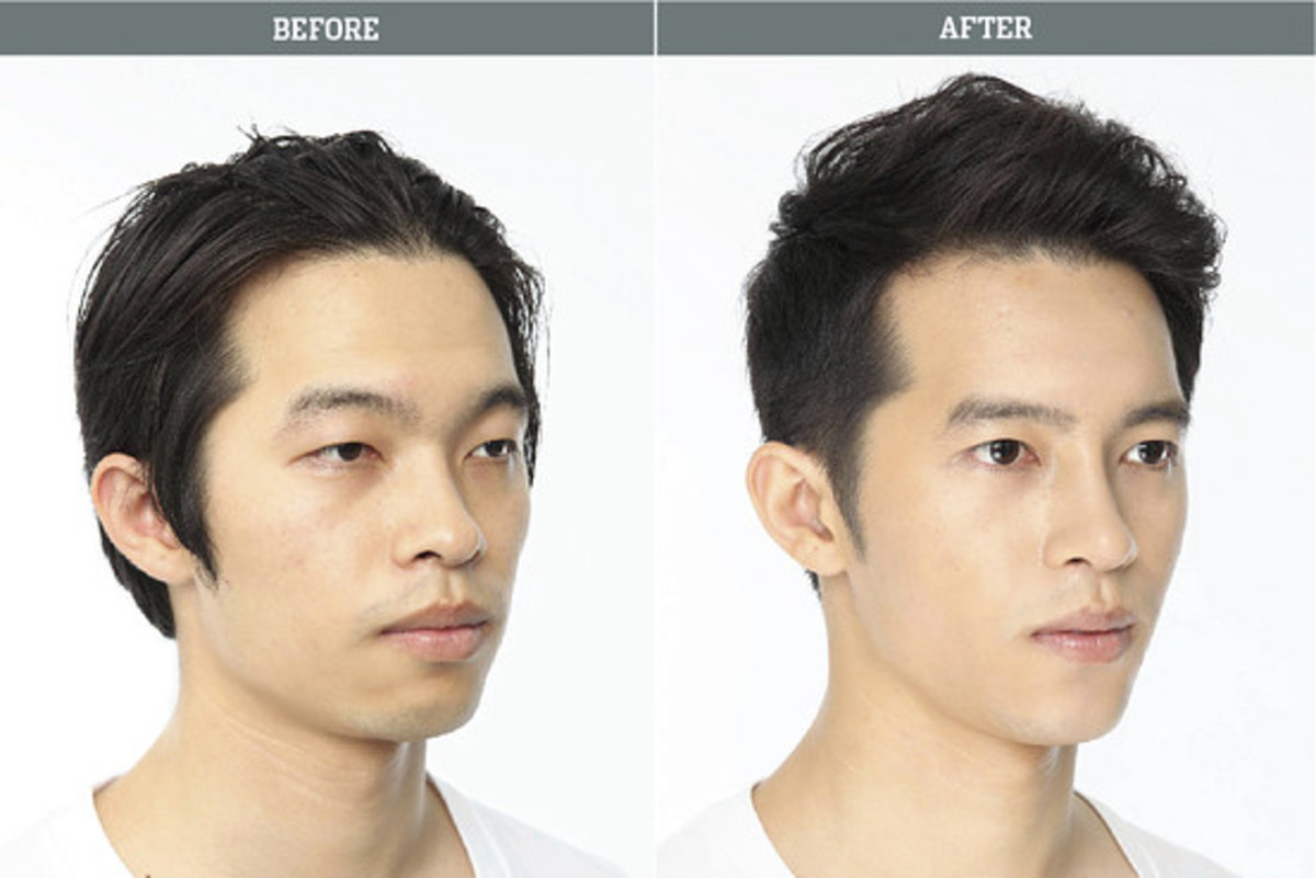 Before and after plastic surgery Notice the widening of the eyes, the straightening of the nose and the reduction of the cheeks.