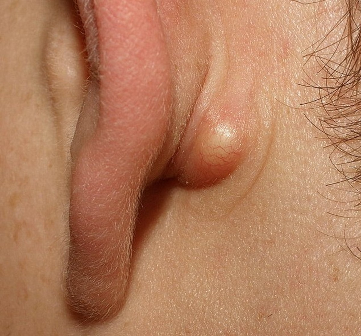 Sebaceous Cyst Causes, Symptoms, Treatment, and Pictures