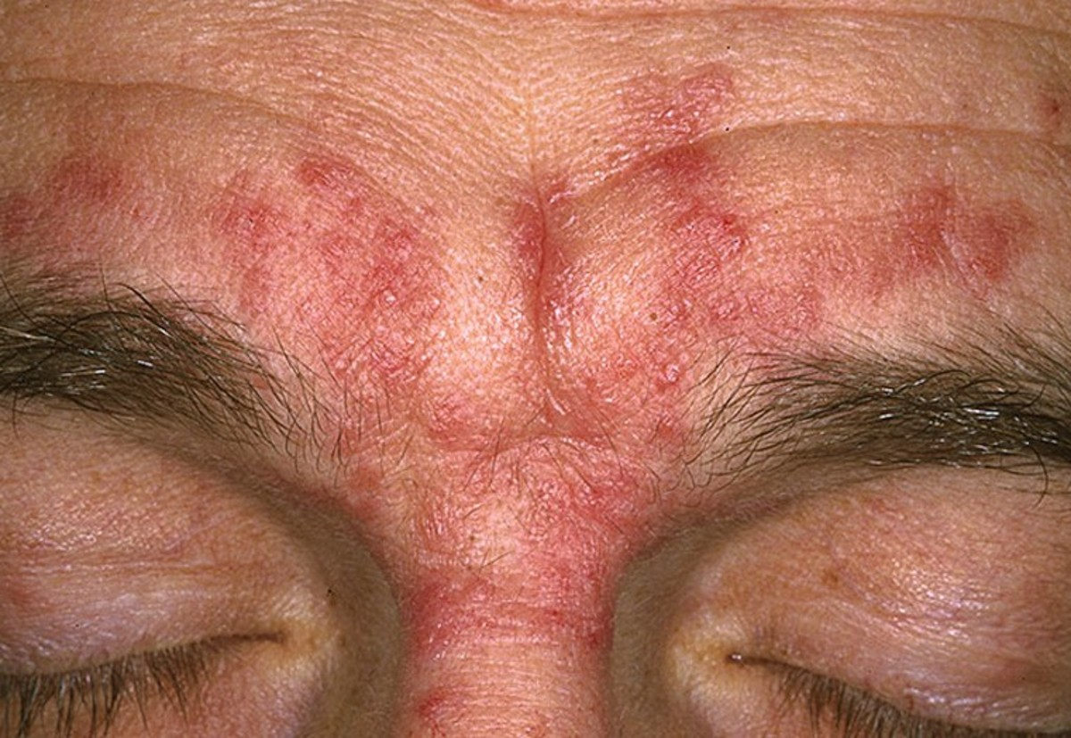 seborrheic-dermatitis-pictures-on-face-scalp-hair-loss-causes-treatment