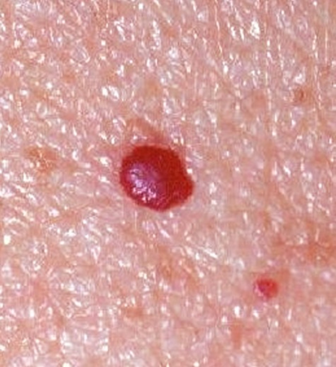 Cherry Angiomas Pictures Symptoms Causes Treatment