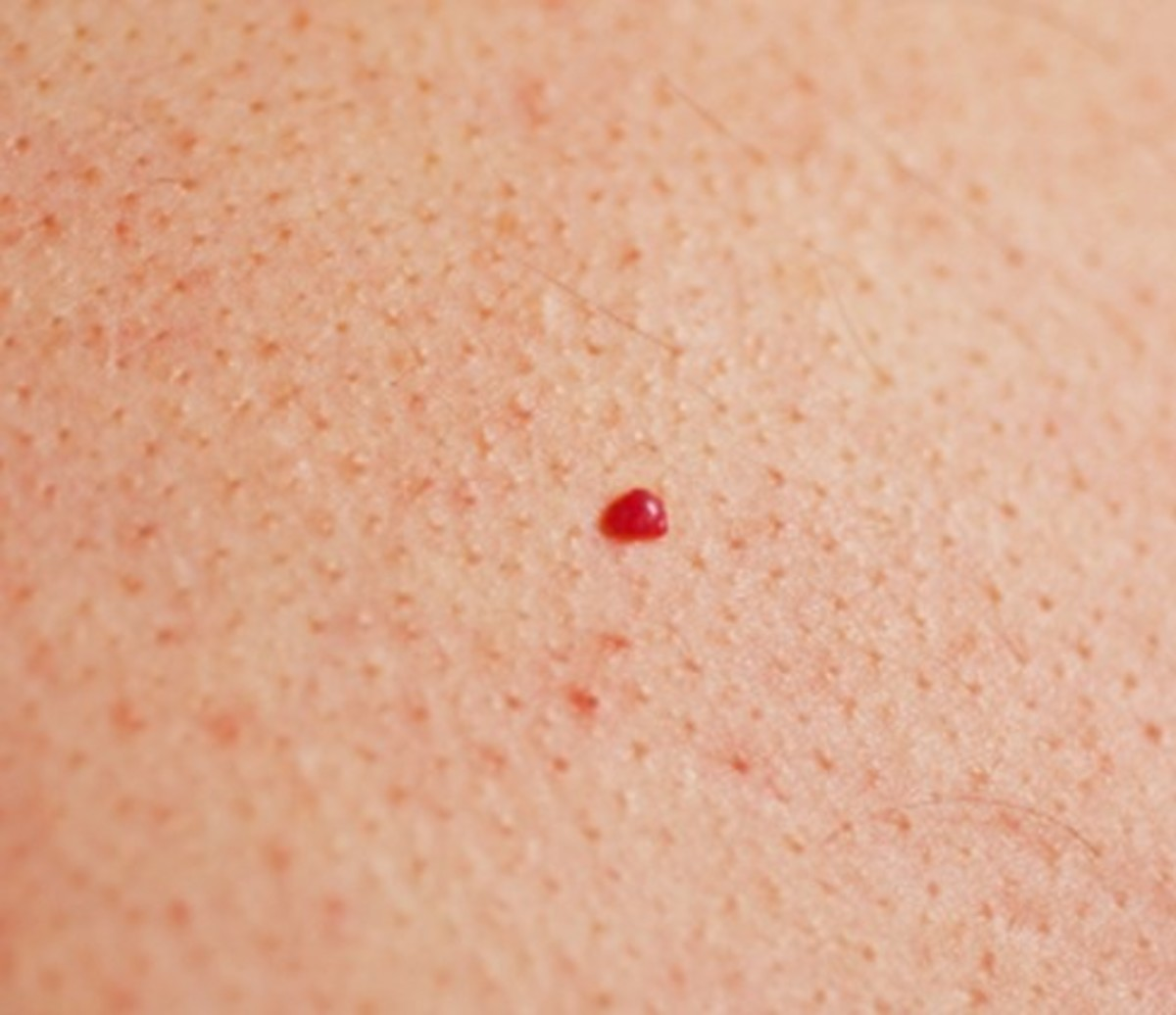cherry angiomas - pictures, symptoms, causes, treatment, removal, Skeleton
