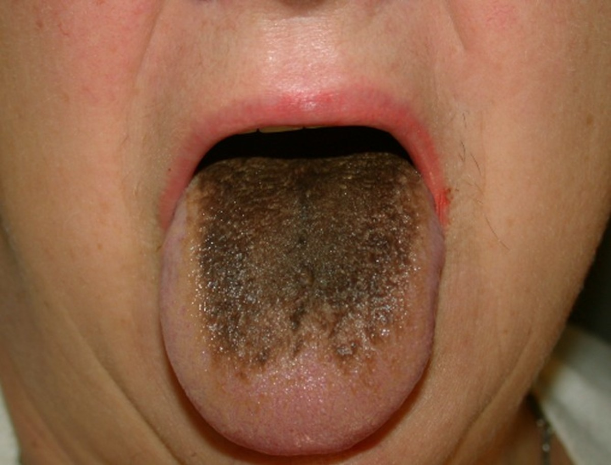 hairy-tongue-black-white-causes-treatment-and-pictures
