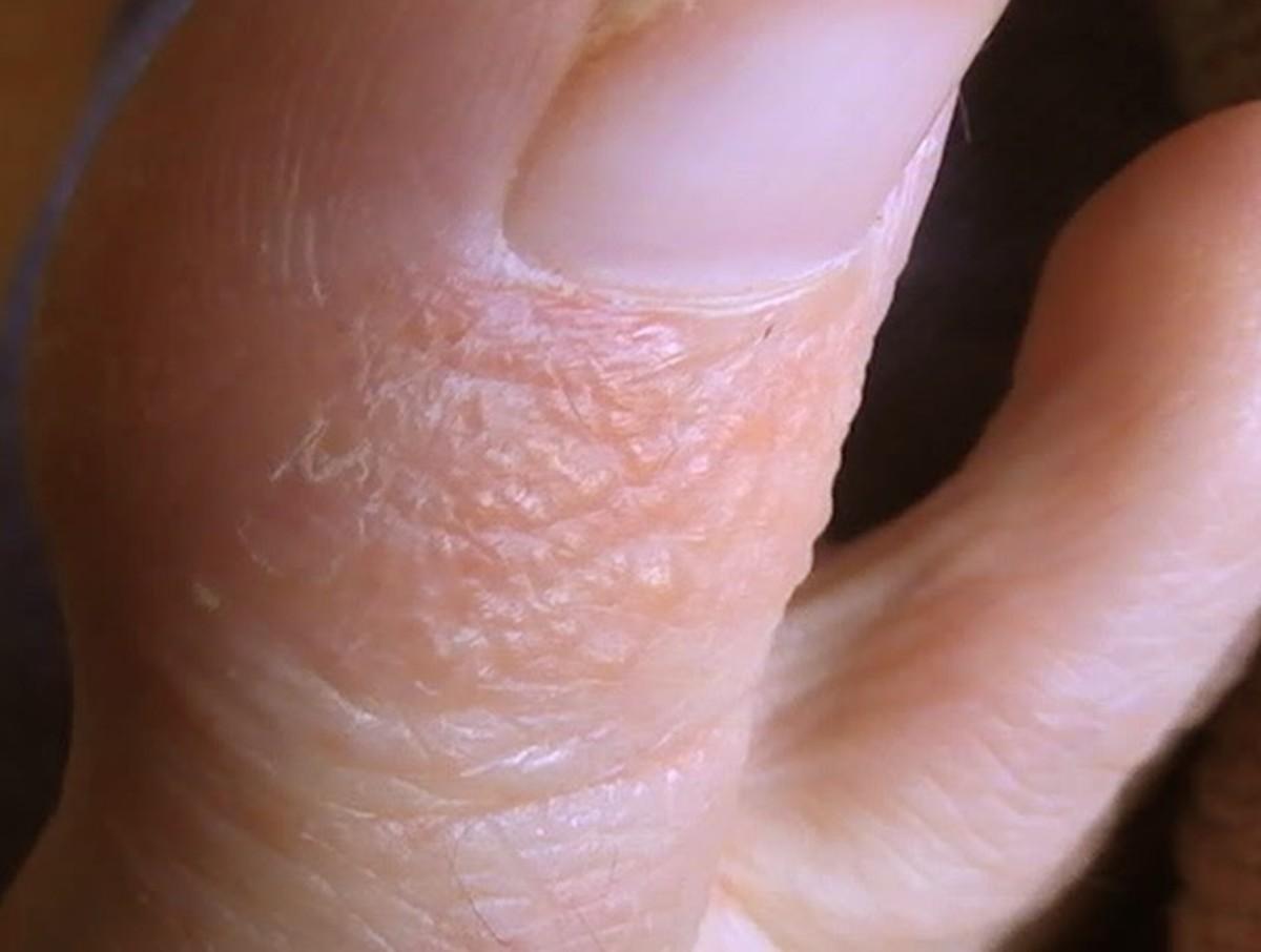 Tiny Blisters On Fingers | Finger Pain