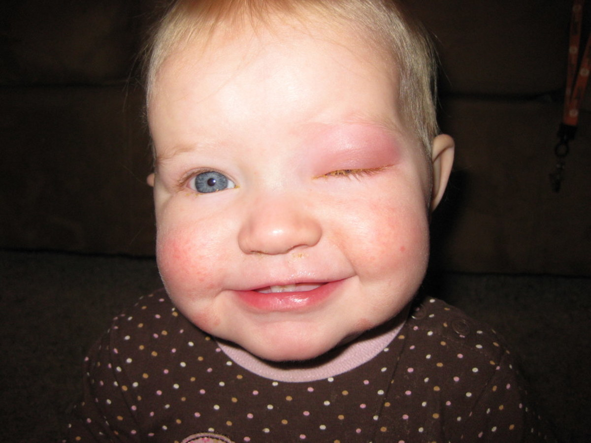 Human breast milk, applied to the affected eye, can dramatically clear up a case of conjunctivitis.