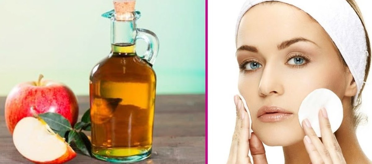 Natural Skincare: Get rid of acne breakouts fast, using Apple Cider Vinegar as toner.