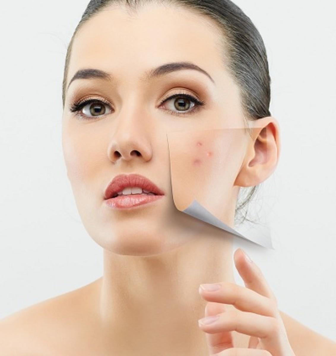 Clear skin without acne, after using Apple Cider Vinegar Toner