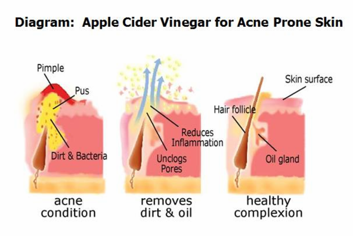 best-toner-for-oily-skin-prevent-acne-control-oil-with-apple-cider-vinegar