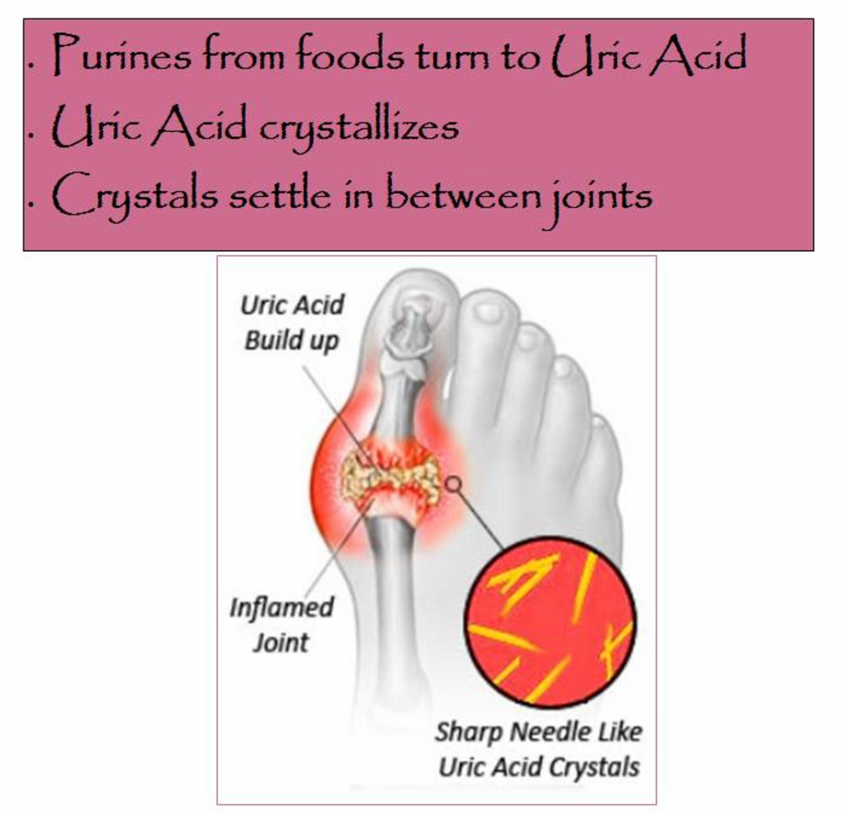 how to decrease uric acid in your system gout pain between toes foods to prevent gout flare ups