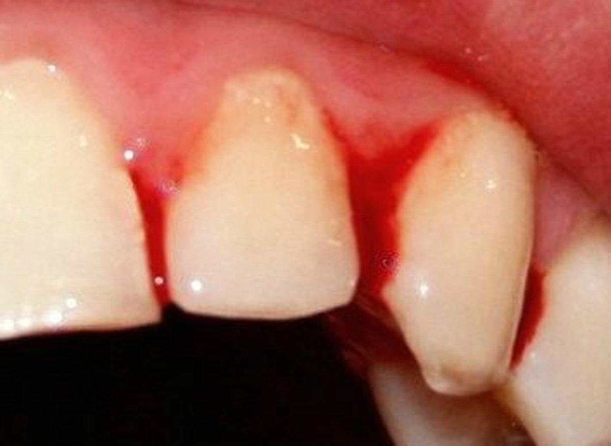 Bleeding gums are a common symptom of Periodontitis