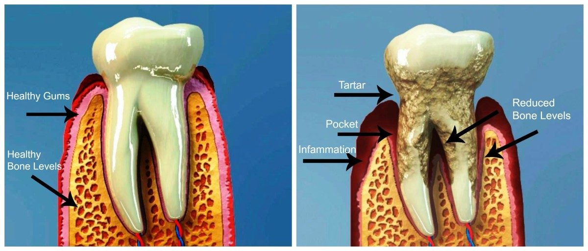 Healthy tooth with healthy gum and bone levels compared with moderate periodontitis. Teeth begin to loosen as the bone levels erode.