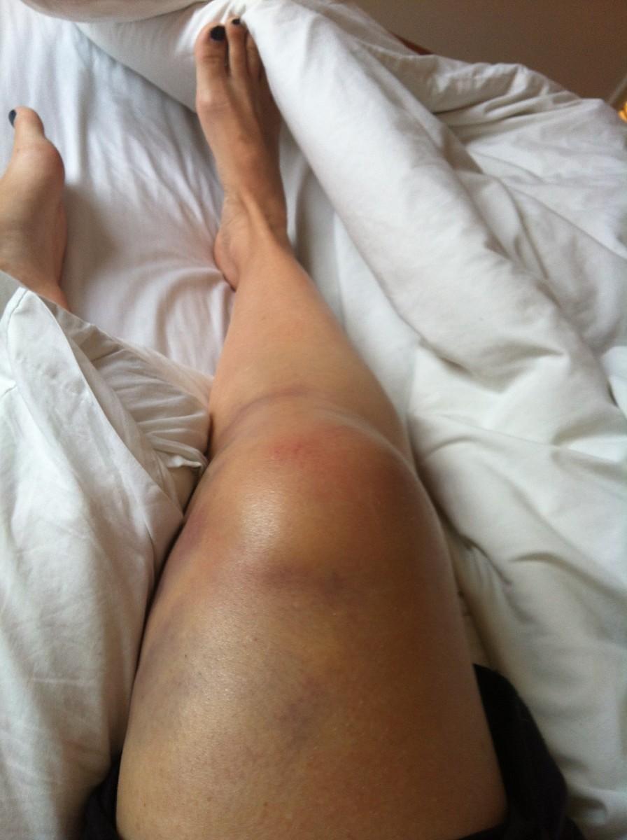 Twenty-four hours after injury
