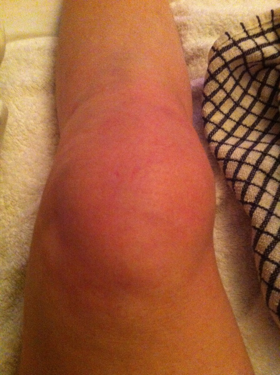 Four hours after injury