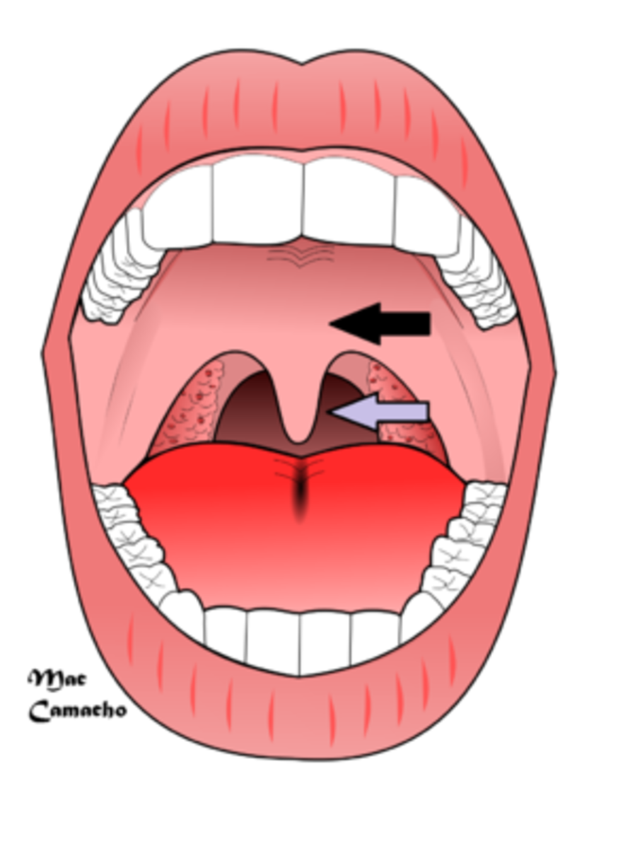 Snoring is most often caused by the vibration of the uvula (grey arrow) and the soft palate (black arrow)