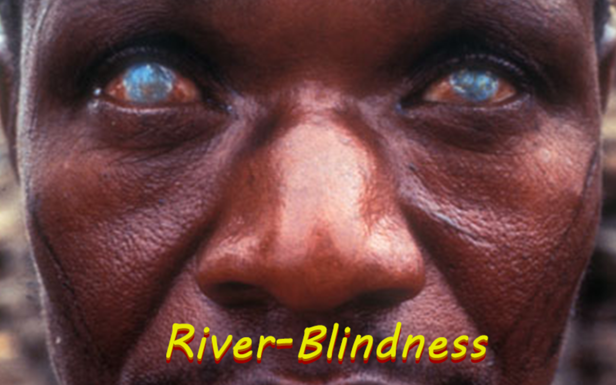River Blindness is a horrible disease that causes blindness after being infected the parasitic worm called Onchocerca Volvulus.