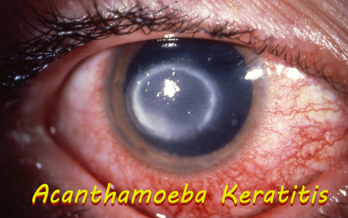 Acanthamoeba Keratitis is a disease known to feed on the human eye.