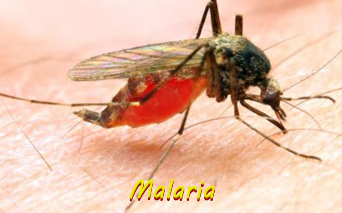 Malaria is a disease transmitted through the bite of an infected mosquito