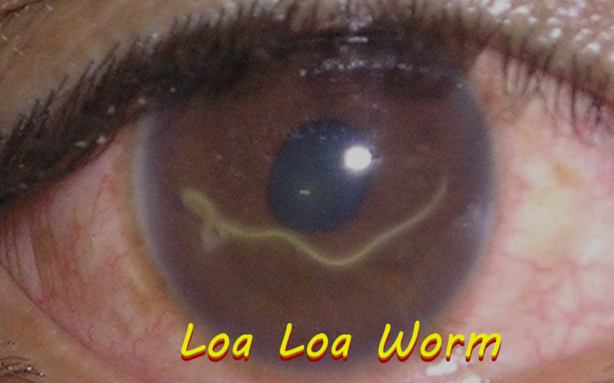 The Loa Loa Worm is a species of filarial nematode that can cause blindness in humans.