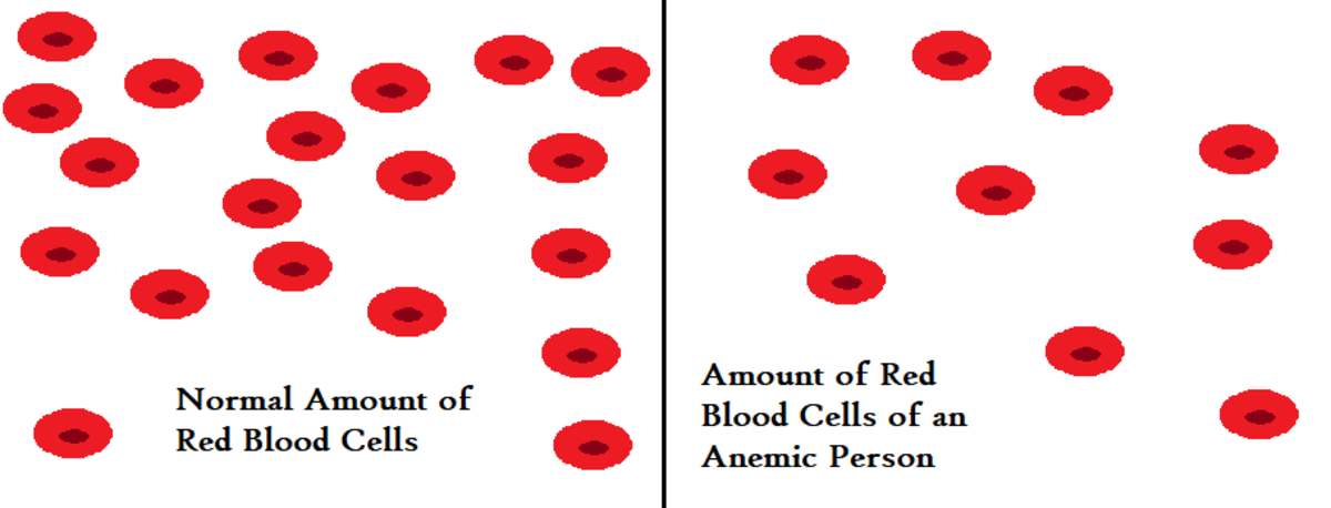 Anemia is characterized by not having enough red blood cells