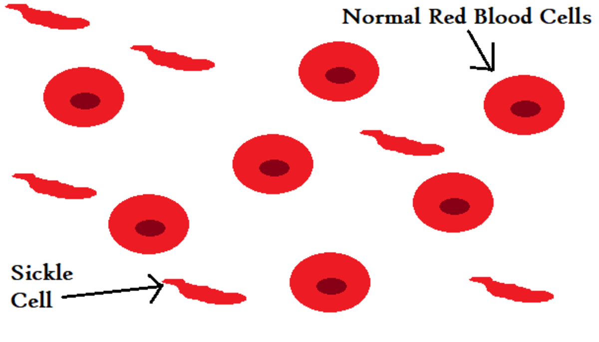 Sickle Cell is characterized by hard, stringy hemoglobin that causes misshapen red blood cells which can easily burst before performing its job.