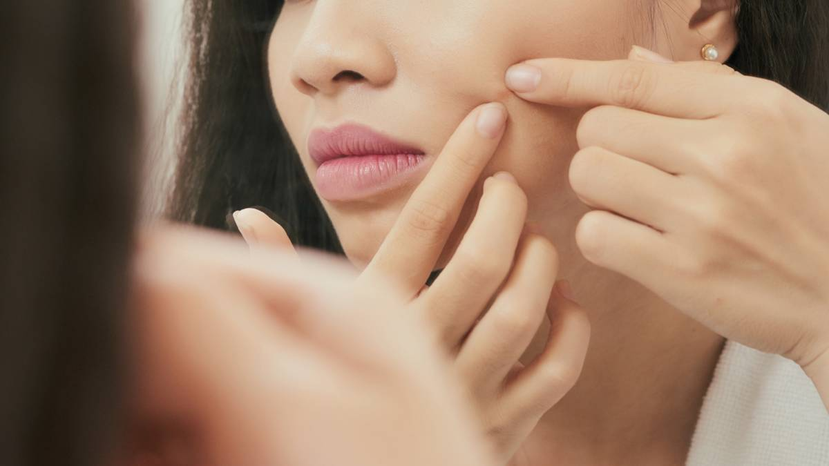 best-ways-to-manage-your-acne-problems
