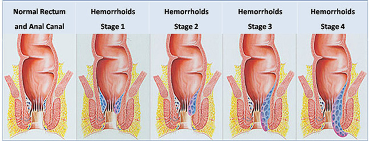 4 stages of Hemorrhoids