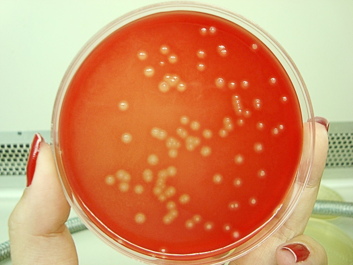 Streptococcus agalactiae growing on blood agar