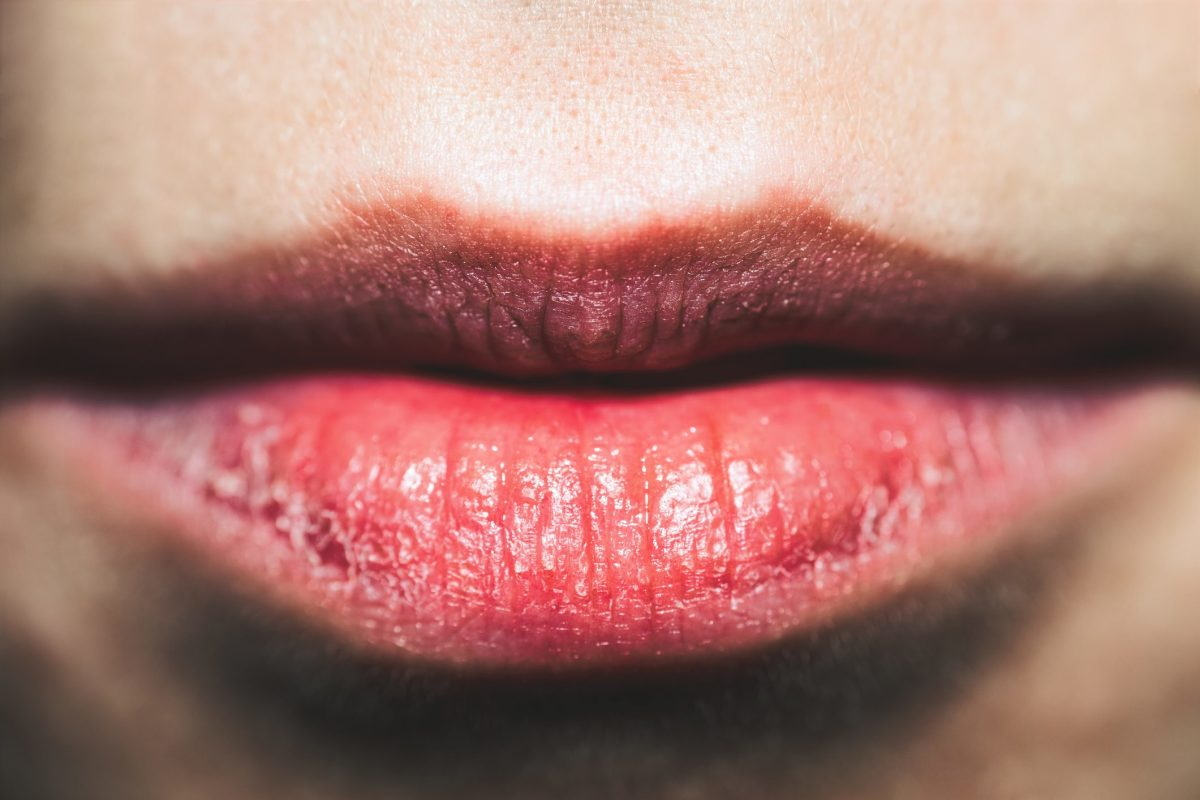 10 steps to alleviate dry, chapped lips.