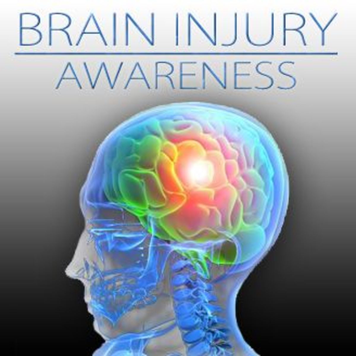 Traumatic brain injury (TBI) is damage to the brain.