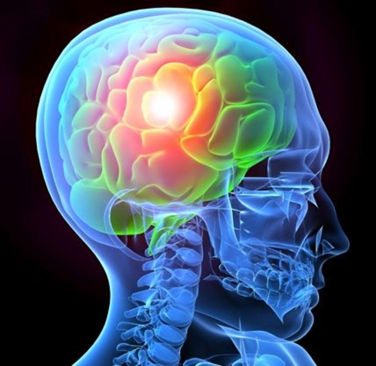 Brain Anatomy from the Brain Injury