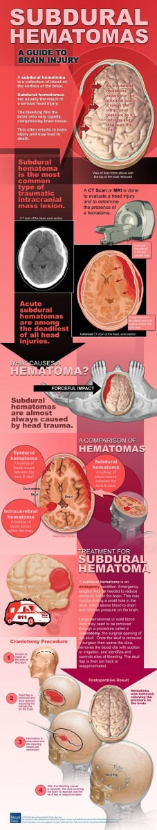 Check out this infographic to learn more about the injury suffered.
