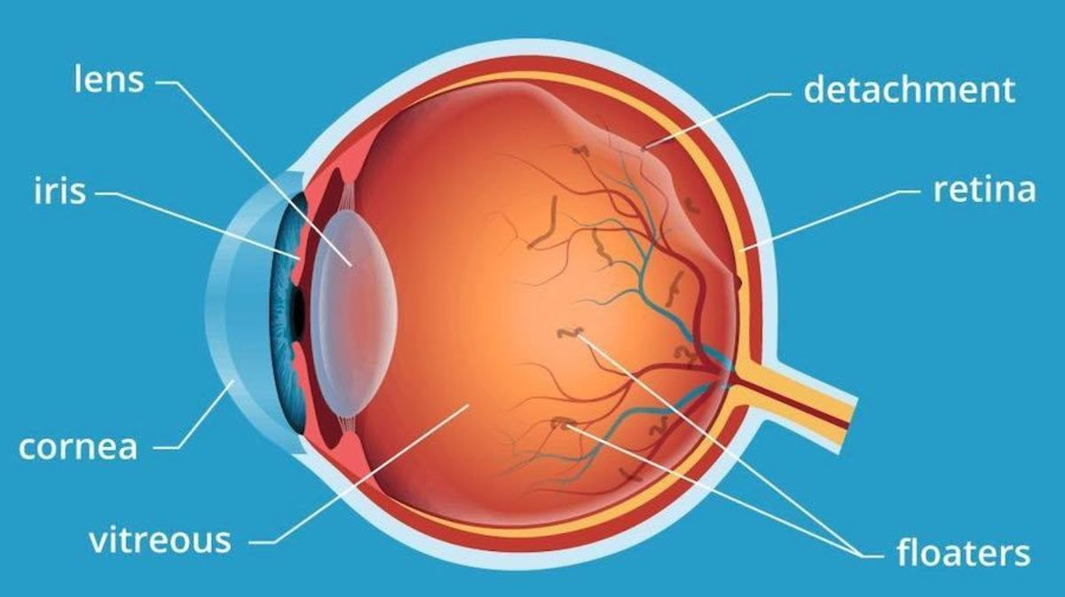 A Posterior Vitreous Detachment occurs as the vitreous shrinks and pulls away from the rear of the eye.